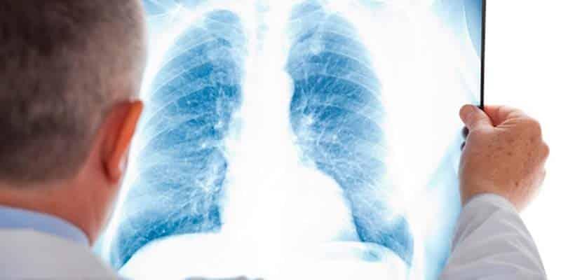 Pneumonia kills more Portuguese than traffic accidents