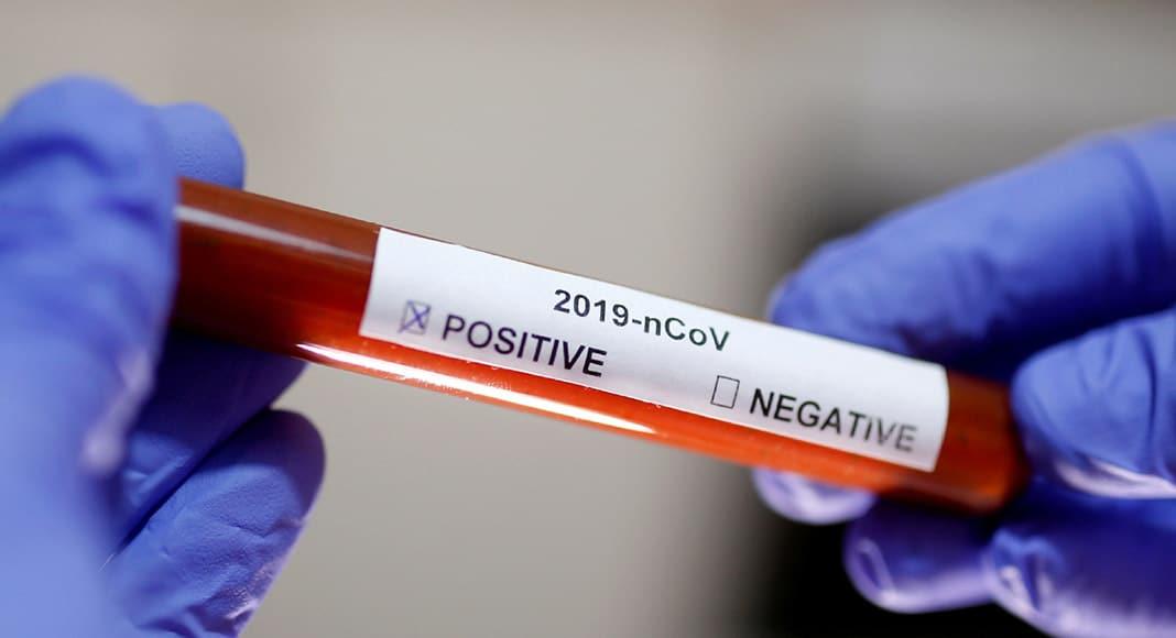 Image result for Coronavirus positive